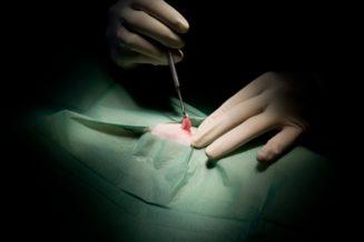 Zabiegi chirugiczne